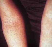 Maladie Tropicale : la Dengue au Costa Rica